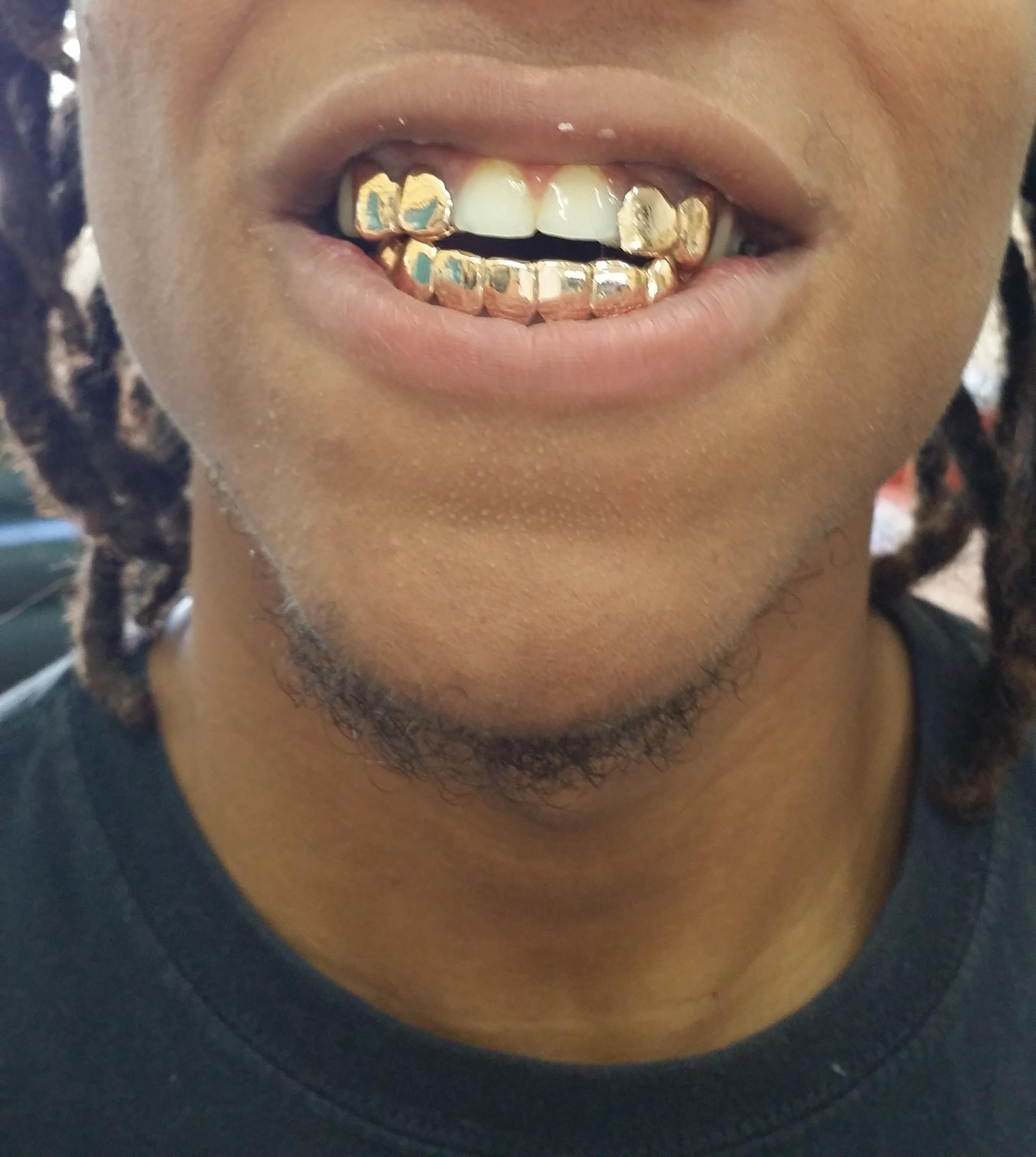 Vampire Platinum: The Gallery For --> Permanent Vampire Teeth Caps